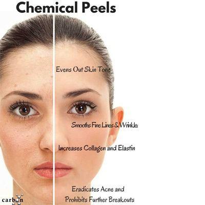 Chemical Peeling for Acne, Acne Scars & Skin