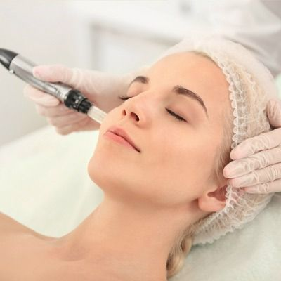 Microneedling with PRP Therapy