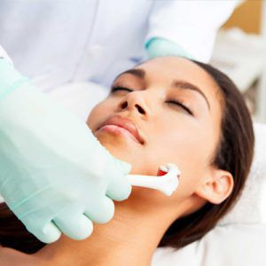 Microneedling for Ice Pick Acne Scars