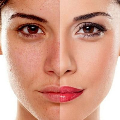 Microdermabrasion Treatment Cost In Dubai