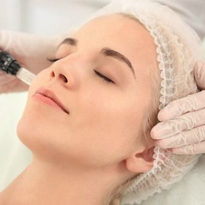 Reasons to Take Micro Needling Treatment for Acne Scars