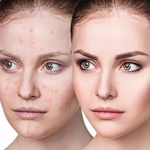Is Laser Treatment for Acne Good or Bad?