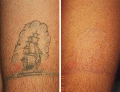 Permanent Laser Tattoo Removal in Dubai, Abu Dhabi - Men & Women