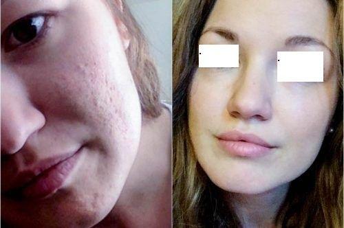 Micro needling Treatment for Acne Scars in Dubai, Abu Dhabi & Sharjah