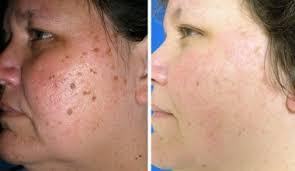 Moles Removal Treatment in Dubai & Abu Dhabi - Mole Removal Clinic