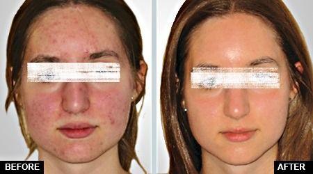 Oxygen facial in Dubai & Abu Dhabi has Some Truly Useful Benefits