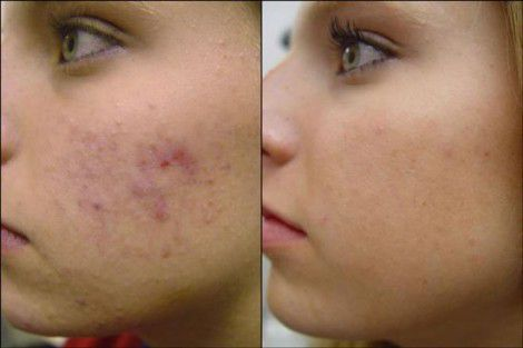 Radio Frequency Treatment for Acne Scars in Abu Dhabi