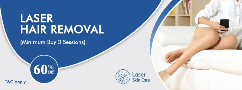 Laser Hair Removal 60% Off on Buy 3 Sessions