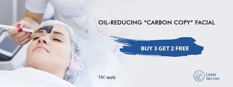 """Oil-Reduction """"Carbon copy"""" Facial"""