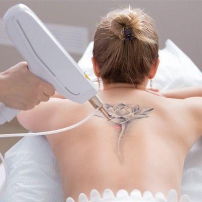 laser tattoo removal in dubai