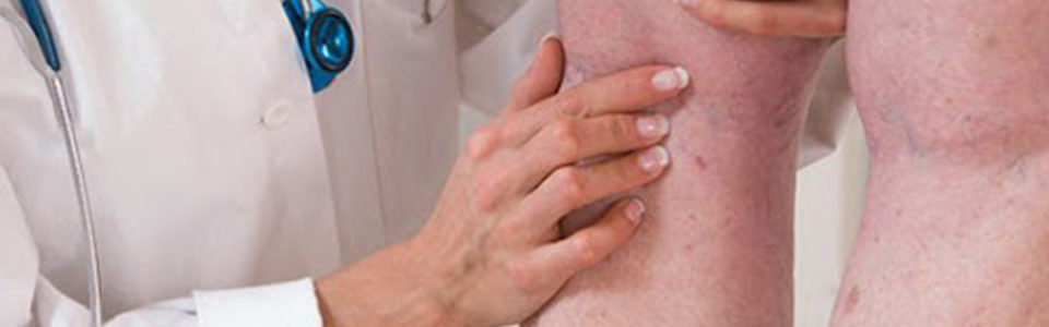 Trombose Venosa Profunda - TVP: Diagnóstico