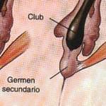 Evitar la Caída del Cabello – Causas y Tratamiento Natural para la Caída del Cabello en Hombres y Mujeres