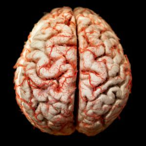 Brain Injury Attorney Serving Los Angeles – Free Consultations