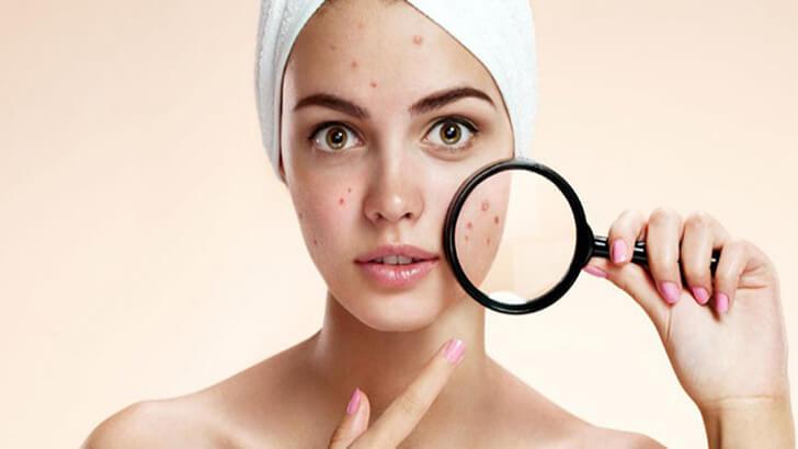 Perbedaan Purging dan Breakout Saat Mencoba Skincare Baru