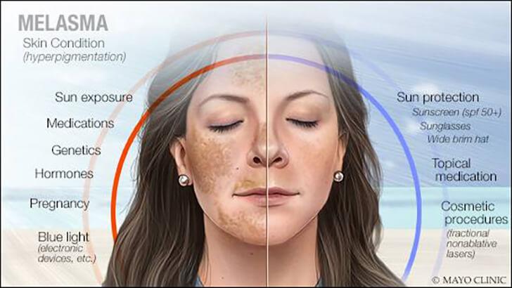 6 Cara Mengatasi Melasma Pada Wajah dan Pemicunya