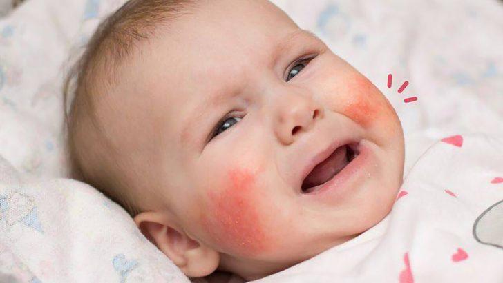Penyebab dan Cara Mengobati Ruam Pada Bayi