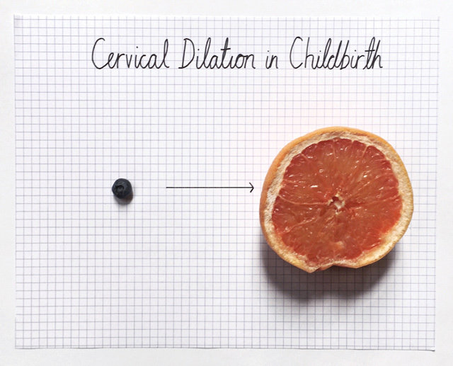 cervicaldilation ce612