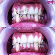 scaling gigi untuk membersihkan kerak pada gigi (10304939) di Kota Yogyakarta