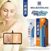 [VICELL] Meilibahenling Cream BPOM / Penghilang Bekas Luka (20887803) di Kota Bekasi