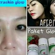 Theraskin Paket Glowing (21102915) di