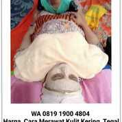 Harga Cara Merawat Kering Tegal WA 0819 1900 4804 (29731515) di Kota Tegal