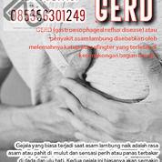 Gerd (Panas Hingga Ulu Hati)    Asam Lambung Dll (30889219) di Kota Batam