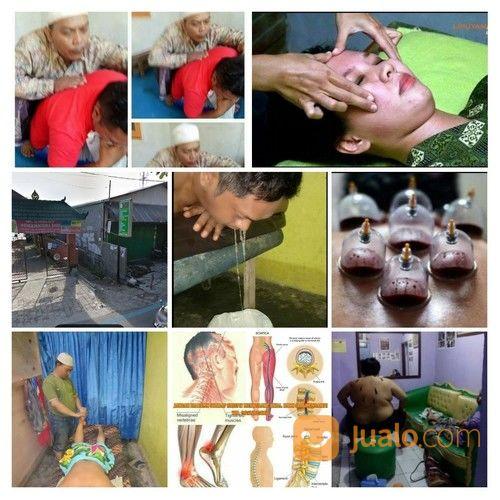 Pengobatan Therapy Gurah (18787155) di Kota Denpasar
