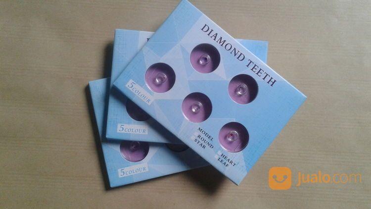Diamond Gigi Crytal Gigi Berlian Gigi Permata Gigi Dental Gems Isi 5 (19547723) di Kota Yogyakarta