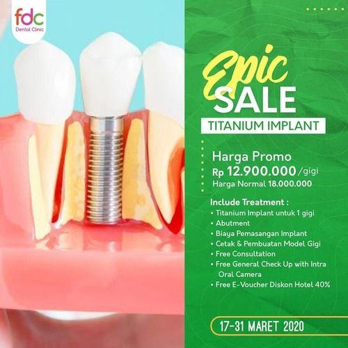 FDC Dental Clinic Promo TITANIUM IMPLANT Rp 12,9 Jt (24160463) di Kota Jakarta Selatan