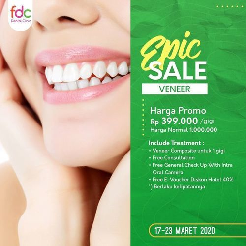 FDC Dental Clinic Promo Veneer Gigi Rp 399.000/Gigi (24160755) di Kota Jakarta Selatan