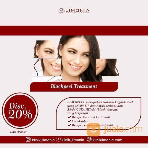 LIMONIA KLINIK PROMO DISC. 20% BLACK PEEL TREATMENT (27448619) di Kota Jakarta Selatan