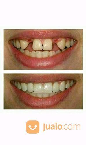 Tukang Gigi Palsu Panggilan Di Purwokerto, Purbalingga, Banyumas, Ajibarang, Wangon Murah Berkualitas. (28103067) di Kab. Banyumas