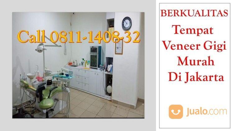 BERKUALITAS, Call 0811-1408-32, Tempat Veneer Gigi Murah Di Jakarta (29775480) di Kota Jakarta Pusat
