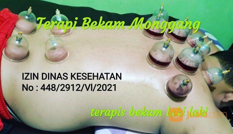Bekam Yogyakarta (30296626) di Kab. Bantul