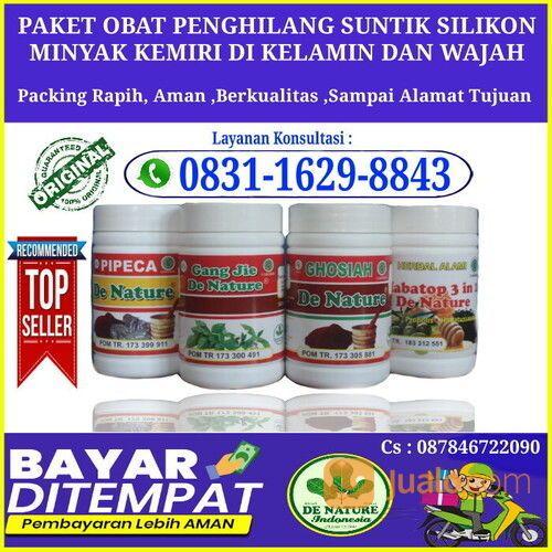 Jenis Obat Untuk Menormalkan Dampak Suntikan Minyak Kemiri Atau Silikon Tanpa Harus Operasi (30889108) di Kab. Bangka Tengah