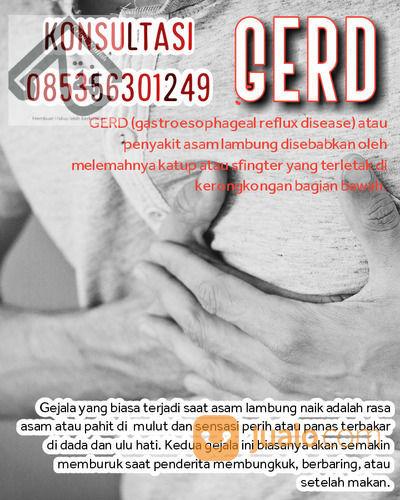Gerd (Panas Hingga Ulu Hati) || Asam Lambung Dll (30889219) di Kota Batam
