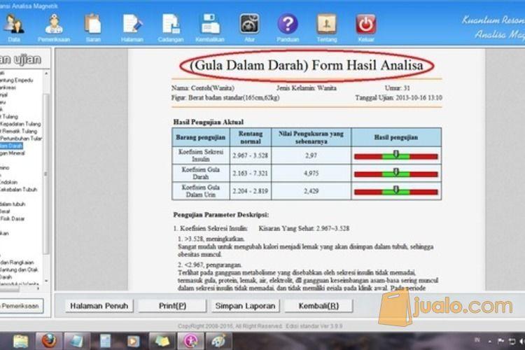 Alat Cek Kadar Gula Darah | QRMA Murah Software Terbaru (3281887) di Kab. Pati