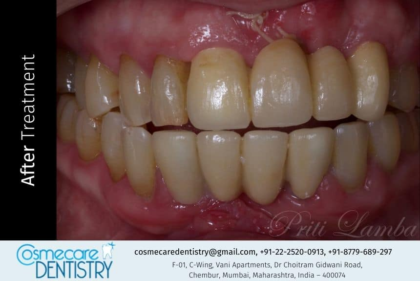 Replacement and Correction of Missing and Broken/Attrited Tooth