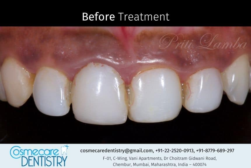 This is how a patient came to us at Cosmecare Dentistry - Dentist in Chembur, this is the before of of the treatment which was the corrected with Tooth Colored Veneers
