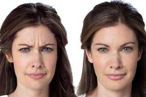 Botulinum toxin | Botox - Dallas, TX - Advanced Skin Fitness