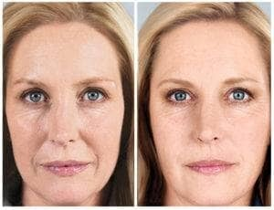 Sculptra Dallas before and after