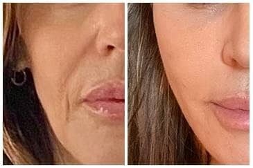 Thread Lift Dallas Before and After