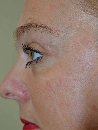 Dallas-Exilis_Ultra_PIC_002-After-face-female-2TX