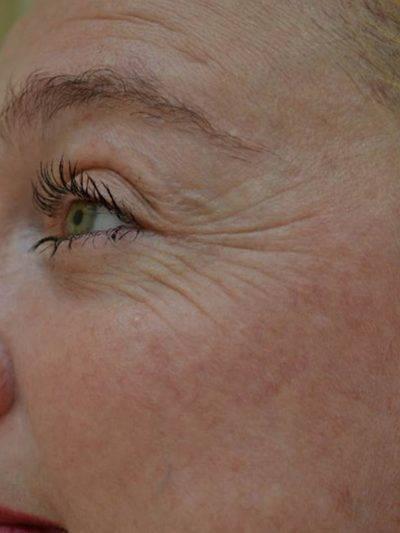 Dallas-Exilis_Ultra_PIC_002-Before-face-female