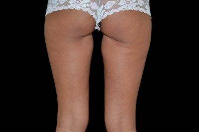 Dallas-Exilis_Ultra_PIC_004-After-buttocks-female-3TX