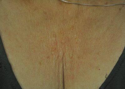 Dallas-Exilis_Ultra_PIC_008-Before-decollete-female-Jason-Lupton-MD