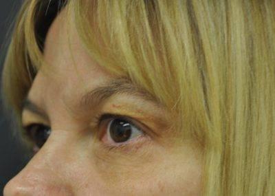 Dallas-Exilis_Ultra_PIC_009-After-eyes-female-Jason-Lupton-MD