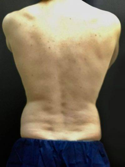 coolsculpting flanks before