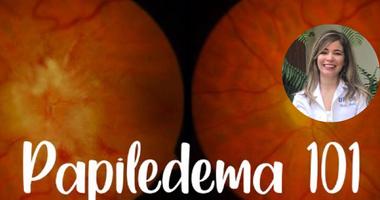 Papiledema 101: Guía Estudiantil