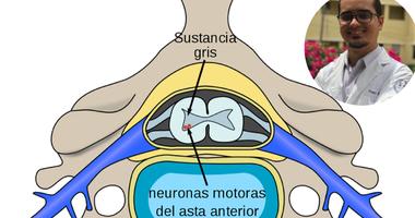 Sinopsis sobre la atrofia muscular espinal